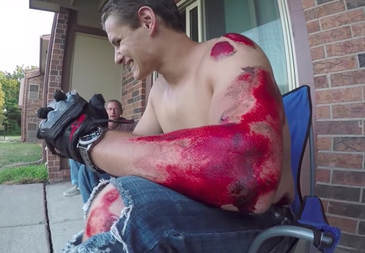 Doku Kaybı - Koruma - düşmüş erkek kol yaraları
